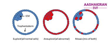 Aneuploidy Embryo